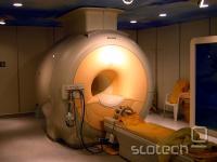 MRI skener