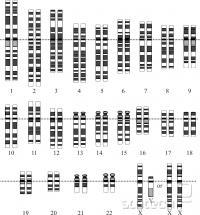 Človeški kariotip, kromosomi obarvani z barvilom Giemso