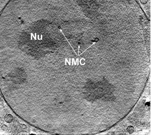 Posnetek celice adenokarcinoma. Vidna sta jedrce (NU) in membranski kanali skozi jedro (NMC).